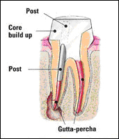 http://www.nashvillefirstimpressions.com/images/healthy_root_canal_2.jpg