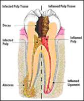 http://www.nashvillefirstimpressions.com/images/diseased_root_canal_1.jpg
