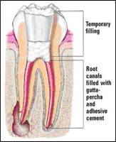 http://www.nashvillefirstimpressions.com/images/diseased_root_canal_2.jpg