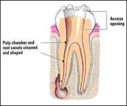 http://www.nashvillefirstimpressions.com/images/tooth_cleaned_root_canal_1.jpg